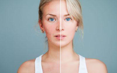 Pelle sensibile e couperose: cause e rimedi naturali