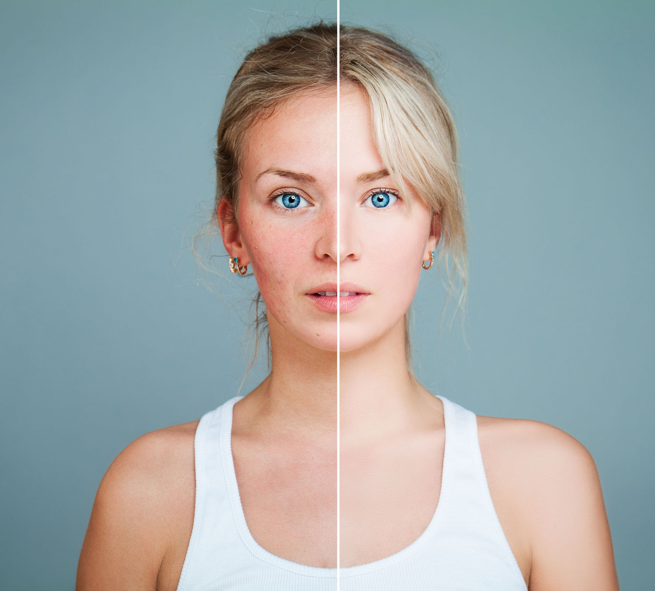 Pelle sensibile e couperose cause e rimedi naturali